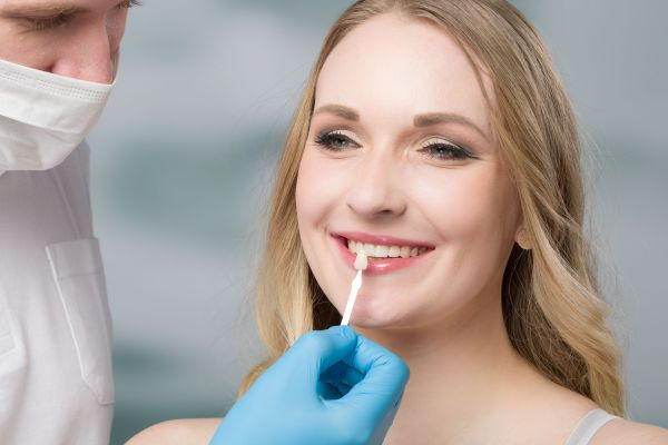 How To Care For Your Dental Veneers